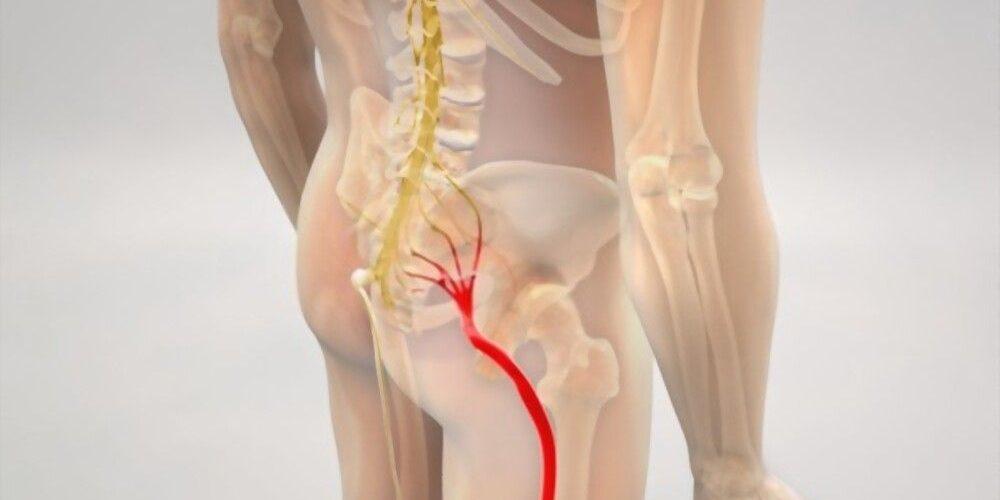 dolor nervio ciático ubicación derecha izquierda