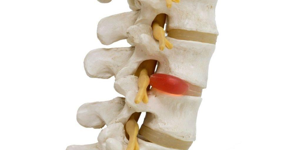 discos de la columna vertebral