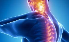 dolor de cuello frecuente